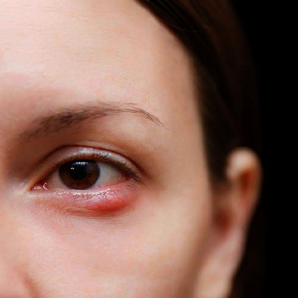 Различные способы лечения ячменя